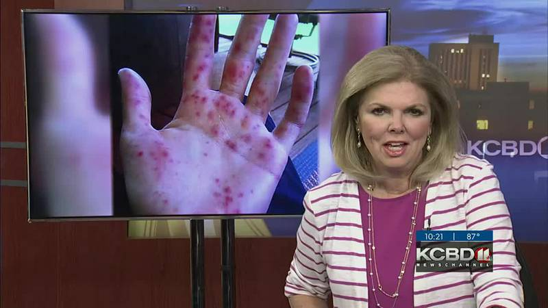 Hand, Foot, and Mouth Disease arriving early this year